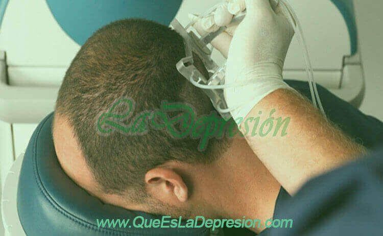 Cirujanos experimentados para el implante de pelo o trasplante capilar
