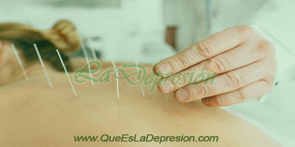 Beneficios de la acupuntura para el estrés y la ansiedad
